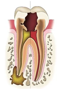 Extensive tooth decay causing severe infection