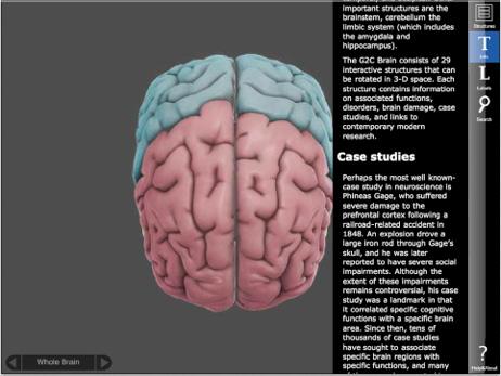 3D Brain04