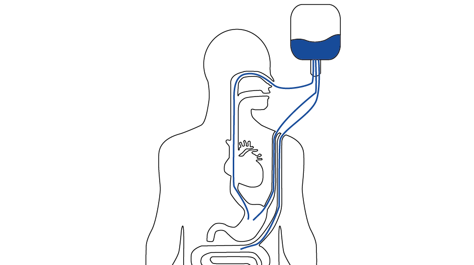 sensors for medical internal feeding pumps