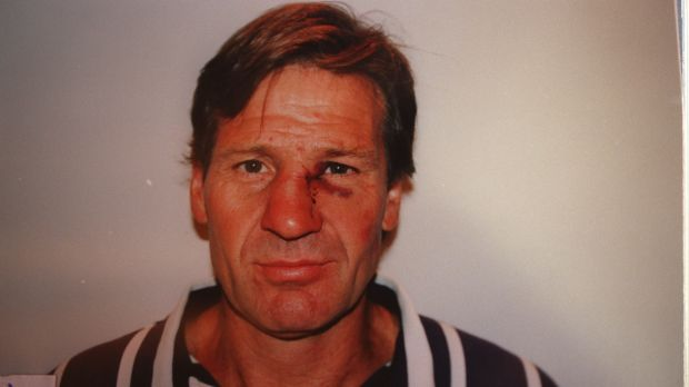 Sam Newman after he was bashed by Michael Hamill.