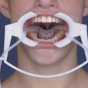Orthodontic NOLA Retractor, Dry Field Systems