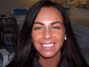 Teeth Whitening Plymouth