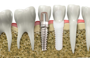 All Ceramic Implants - Dental Implant Services Plymouth