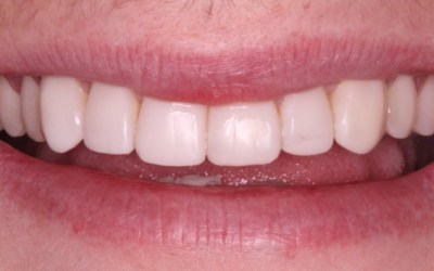 Dental Composites In Plymouth