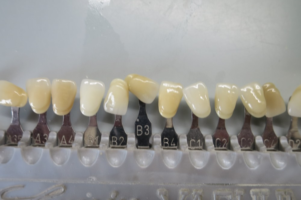What is Aesthetic Dentistry