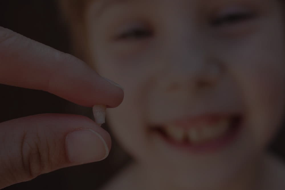 What to do with a dental fracture or loss of a tooth due to trauma?