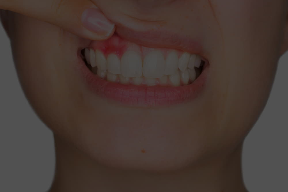 What types of lumps on the gums can exist?