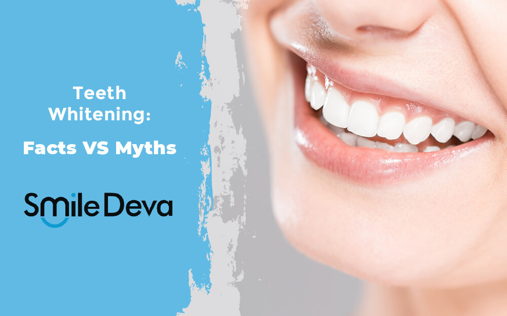 Teeth whitening: Facts vs Myths