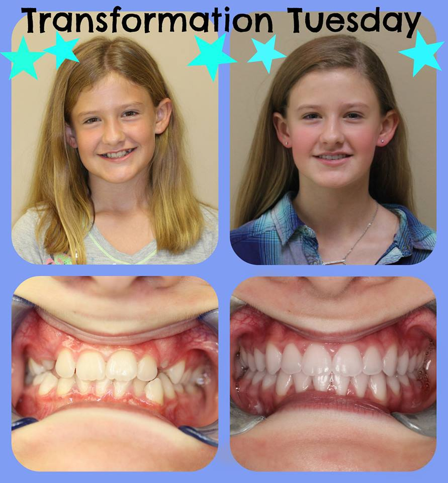 The Buzz on Braces Before And After