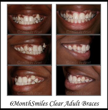 Straight teeth in just 7 months by Six Month Braces with Charlotte family dentist Dr. Payet