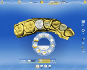 one-day porcelain dental crowns with new CEREC CAD/CAM