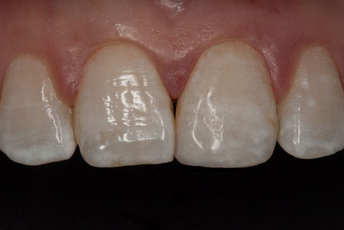 Close-up photo of a tooth-colored composite filling, or bonding