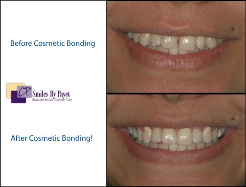 Charlotte dentist Dr. Payet used cosmetic tooth bonding to close a gap between front teeth.