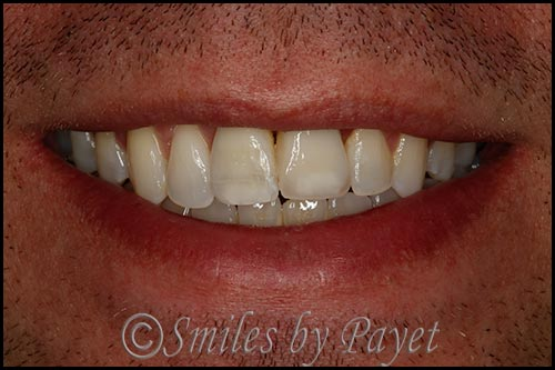 Invisalign and a dental implant and crown cosmetic dentistry