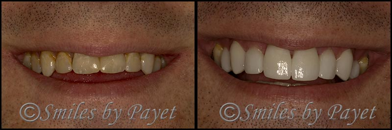 Cosmetic dentist of Charlotte NC, Dr. Payet, shows his own porcelain dental veneers