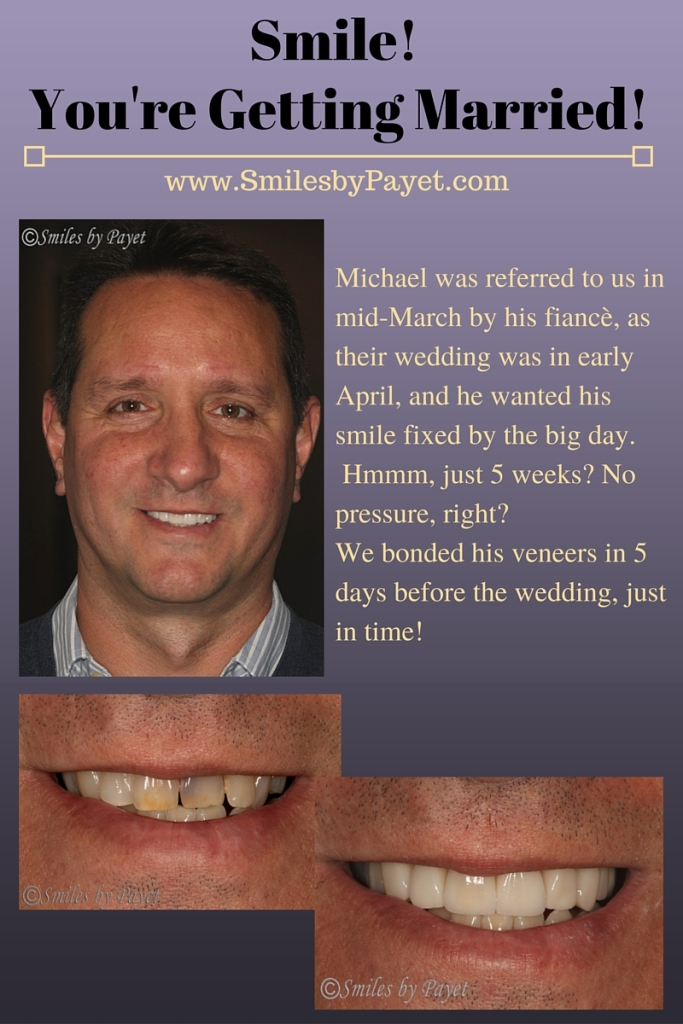 Porcelain veneers for a smile makeover by Charlotte cosmetic dentist Dr. Payet