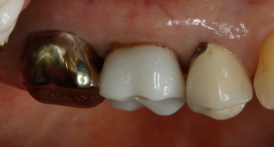 Side view of 17yr old CEREC crown by Charlotte dentist Dr. Payet