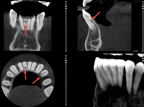 3D cone beam x-ray views, internal resorption lower front tooth