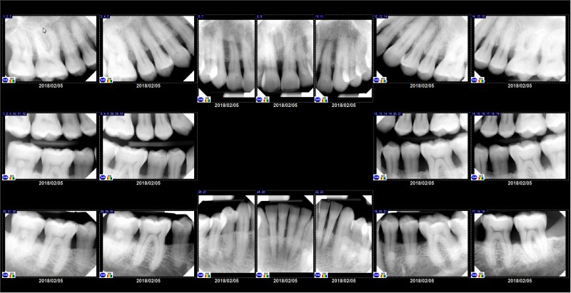full mouth series of x-rays