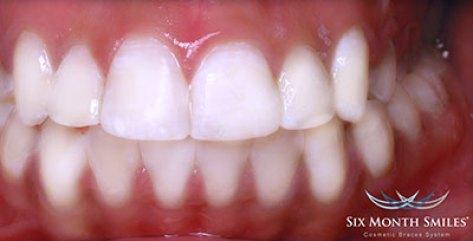 Transformasi Senyum- Global Estetik Dental Care