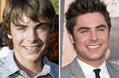 sorriso de Zac Efron antes e depois de usar aparelho dental