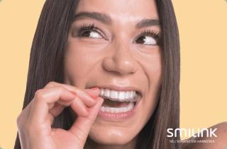 sorriso alinhado. mulher colocando a placa de aparelho invisível sob os dentes