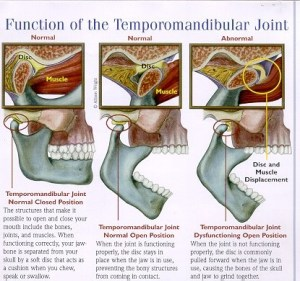 TMJ and Jaw Pain | Snider Chiropractic Center