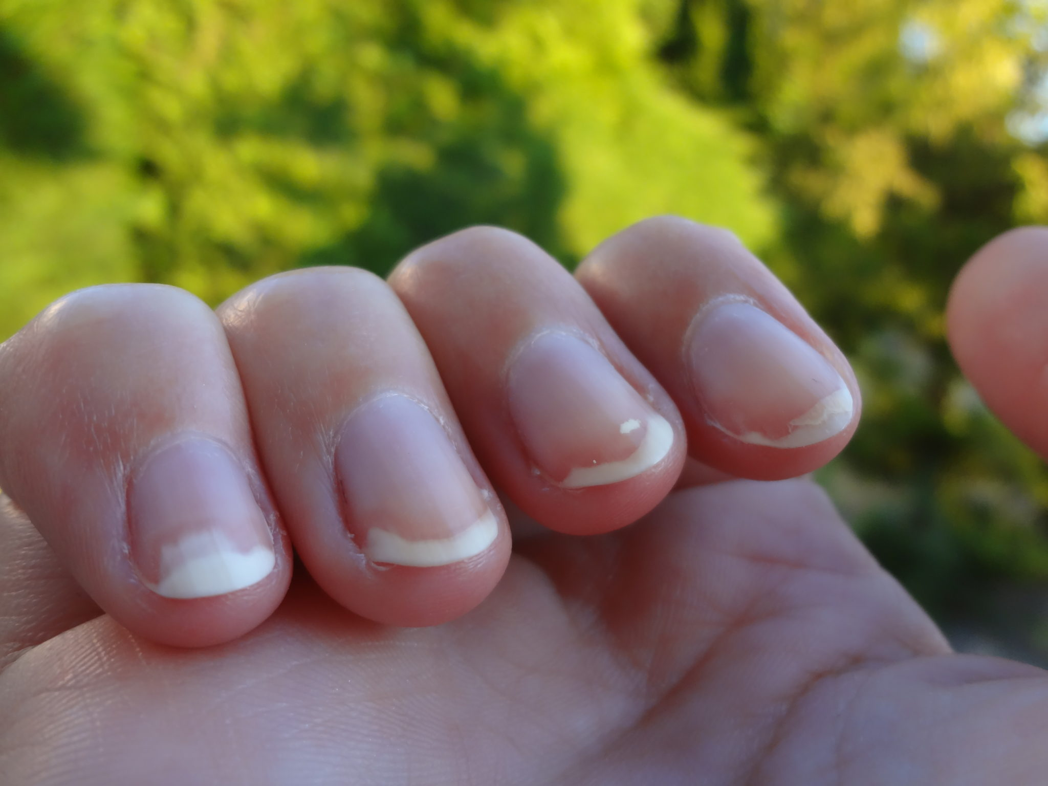 mycoses des ongles des mains photos