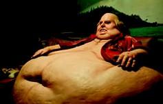 La obesidad reduce la esperanza de vida de las personas