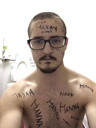 hanna-poisonivylul-poison-ivy-forehead-victim-5