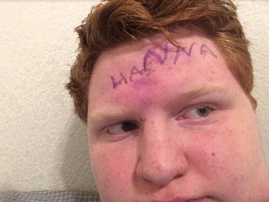 hanna-poisonivylul-poison-ivy-forehead-victim-6