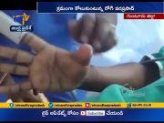 Doctors Performs Rare Surgery at Guntur  (Video)