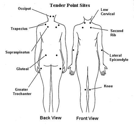 illustration of tender point sites, back view and front view