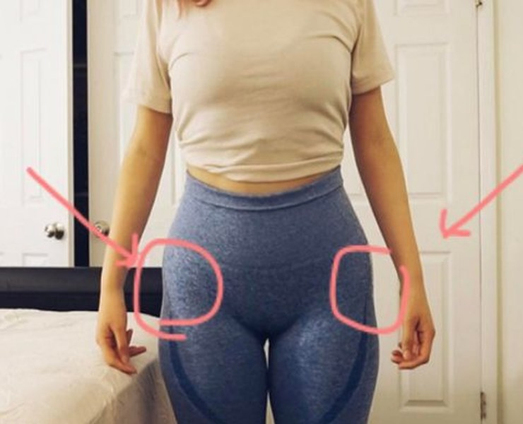 What are hip dips? It's how your hips project out and then insert in! There's no causes of hip dips, in fact, they're very common. However, a majority of women that have them aren't the biggest fans. Here's how to tell if hip dips.