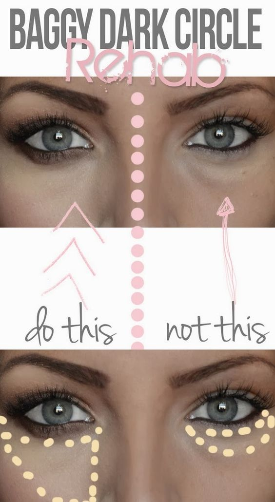 Use concealer to quickly vanish them, but make sure you apply the concealer correctly: an upside down triangle, NOT a half moon.