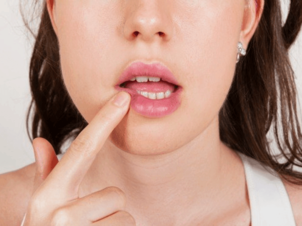 Why We Should Stop The Stigma Around STDs