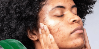 Why Acne Doesn't Make You Any Less Beautiful