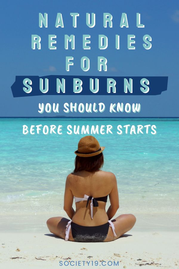Sunburn, Natural Remedies For A Sunburn You Should Know Before The Summer Hits
