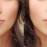 #Saúde: Preenchimento labial – Saiba tudo sobre este procedimento estético que está em alta no Brasil