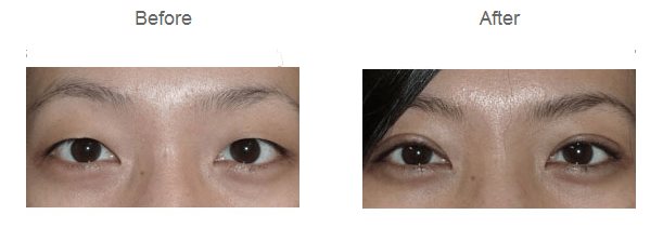 sk-plastic-surgery-procedures-eyelid-surgery2