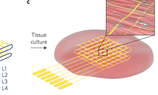 A smarter 'bionic' cardiac patch that doubles as advanced pacemaker/arrhythmia detector | KurzweilAI
