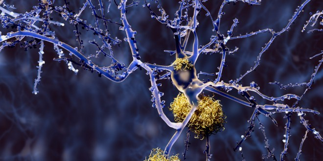 Method discovered to remove damaging amyloid plaques found in Alzheimer's disease | KurzweilAI