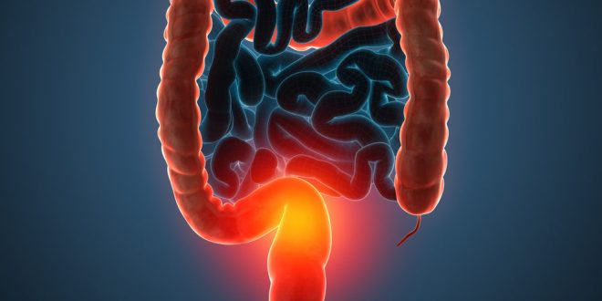 Colorectal cancer is on the rise among younger adults | Science News