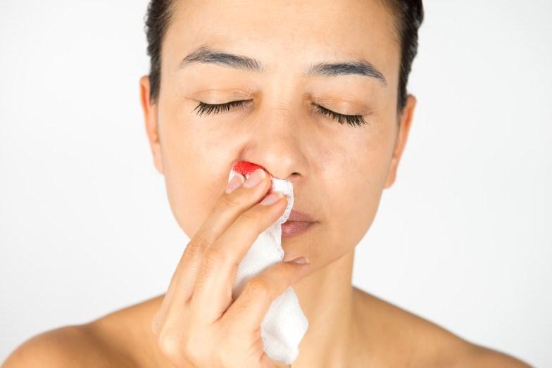 J'ai fréquemment des saignements de nez, que faire ?