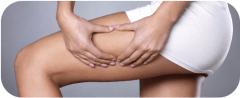 Celiulitas-prevencija moterims 2