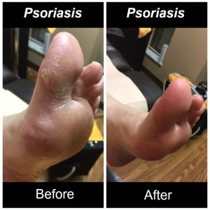 2017-02-22-psoriasis-2-1