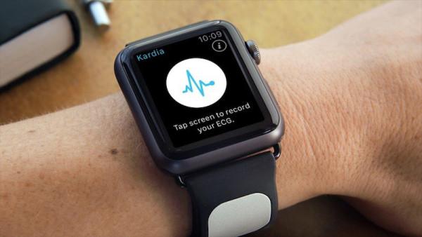 cardiograma-app-apple-watch-prevendra-infartos-3