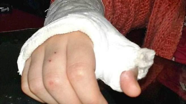 Hombre rompió el brazo de su esposa por perder un pollo