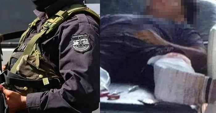 Policía que lesionó a joven en Sonsonate es enviado a prisión