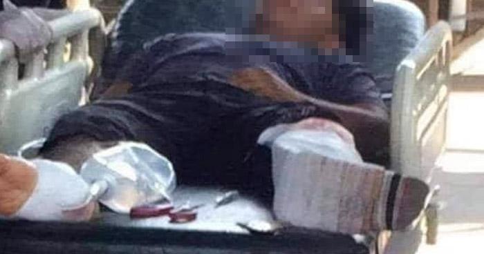 Investigarán caso de un joven que fue baleado por policías en Sonsonate